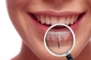Implantes Dentale en Cúcuta - Colombia